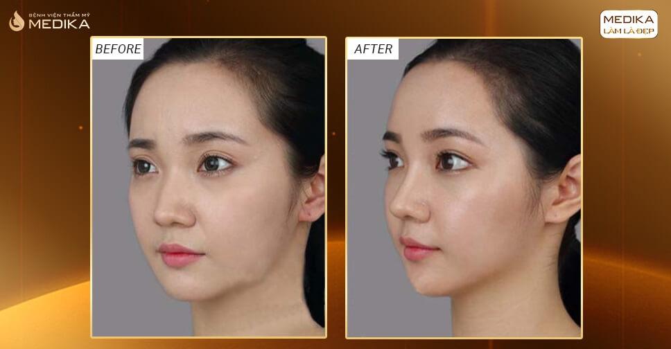 Nâng mũi bằng sụn sườn có nhanh lành không? - Nangmuislinedep.com.vn
