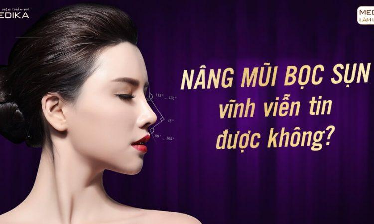 Nâng mũi bọc sụn vĩnh viễn tin được không? - Ở Nangmuislinedep.com.vn