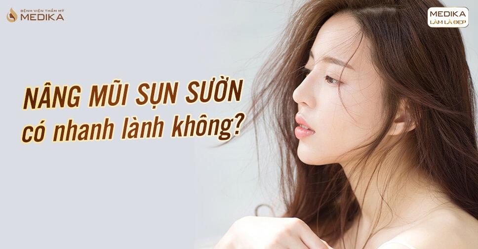 Nâng mũi sụn sườn có nhanh lành không? - Nangmuislinedep.com.vn