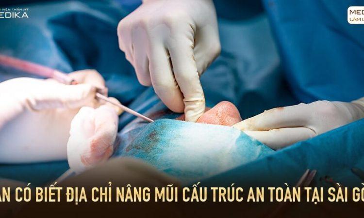 Bạn có biết địa chỉ nâng mũi cấu trúc an toàn tại Sài Gòn? - Tại nangmuislinedep.com.vn