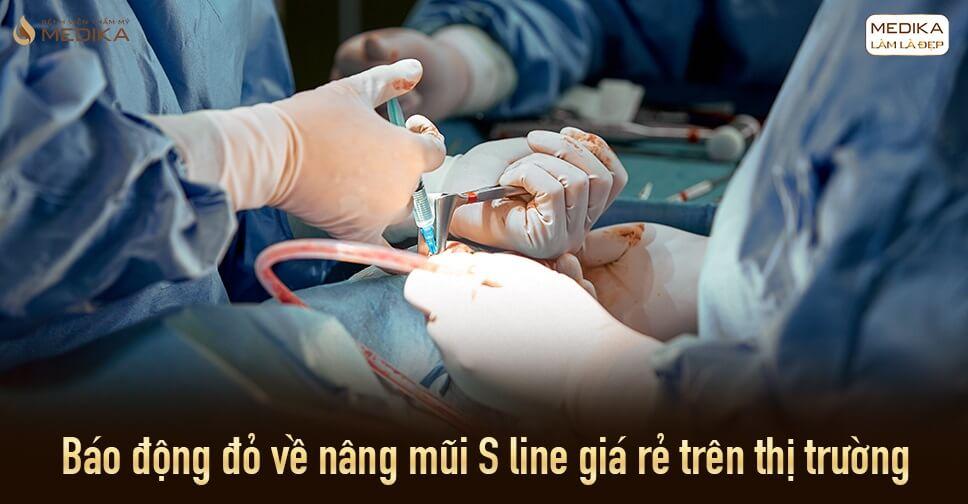 Báo động đỏ về nâng mũi S line giá rẻ trên thị trường ở Nangmuislinedep.com.vn