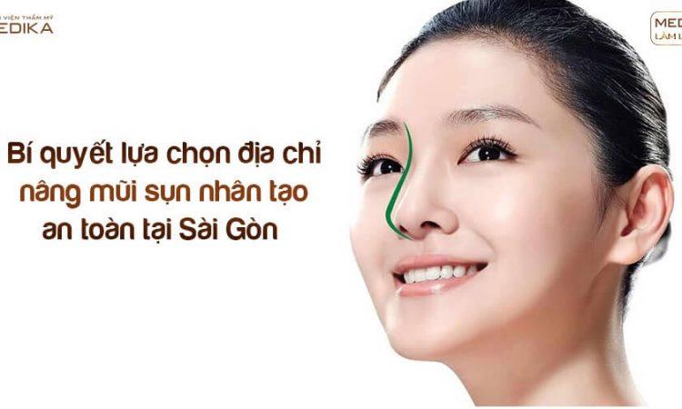 Bí quyết lựa chọn địa chỉ nâng mũi sụn nhân tạo an toàn tại Sài Gòn - Nangmuislinedep.com.vn