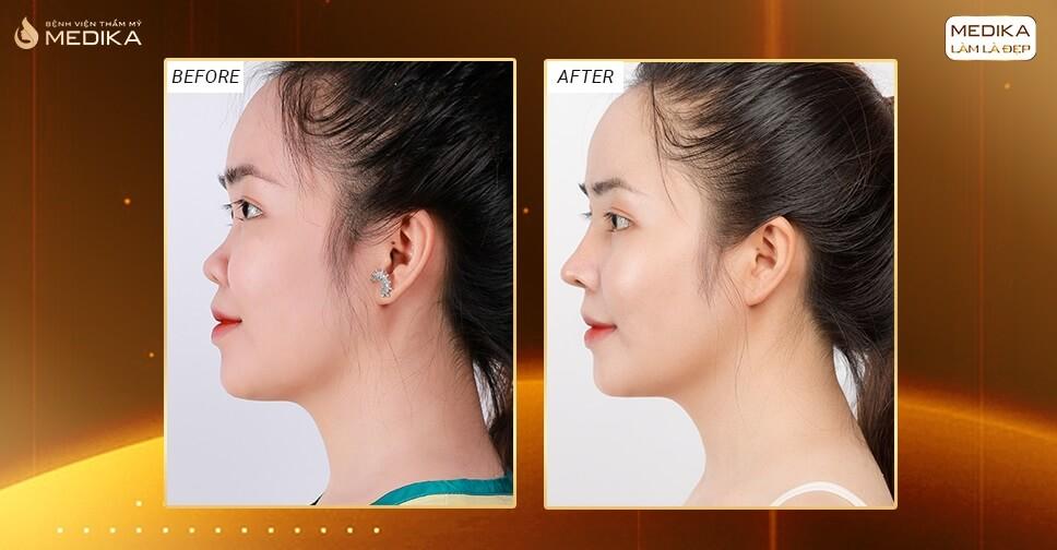 Gạt bỏ âu lo biến chứng khi nâng mũi cấu trúc ở Nangmuislinedep.com.vn