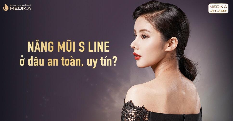 Nâng mũi S line ở đâu an toàn và uy tín? - Tại Nangmuislinedep.com.vn