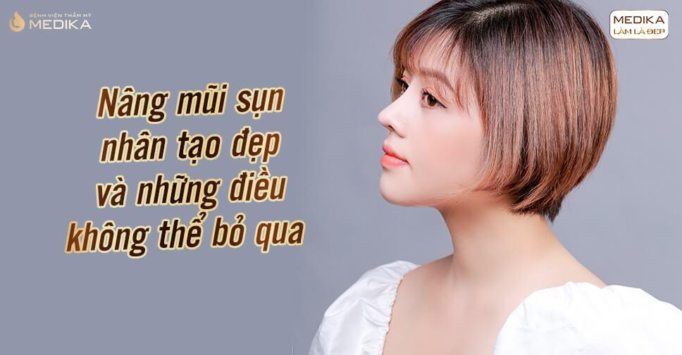 Nâng mũi sụn nhân tạo đẹp và những điều không thể bỏ qua tại Nangmuislinedep.com.vn