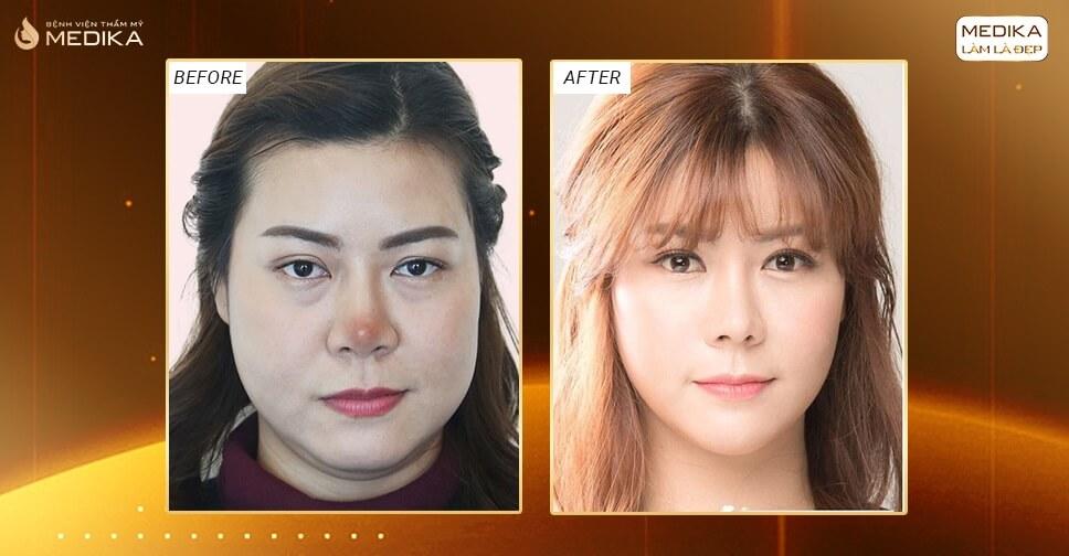 Những dấu hiệu nhiễm trùng sau nâng mũi sụn nhân tạo ở Nangmuislinedep.com.vn