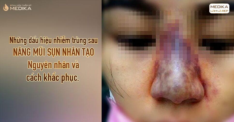 Những dấu hiệu nhiễm trùng sau nâng mũi sụn nhân tạo tại Nangmuislinedep.com.vn