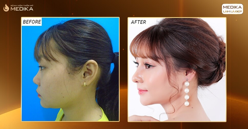 Những điểm cộng khiến nâng mũi S line được yêu thích ở Nangmuislinedep.com.vn