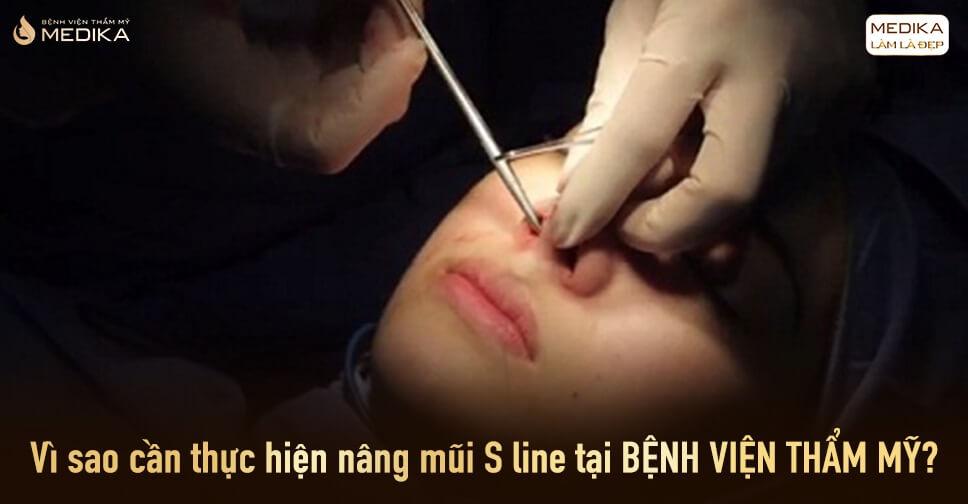 Vì sao cần thực hiện nâng mũi S line tại bệnh viện thẩm mỹ? - Tại Nangmuislinedep.com.vn