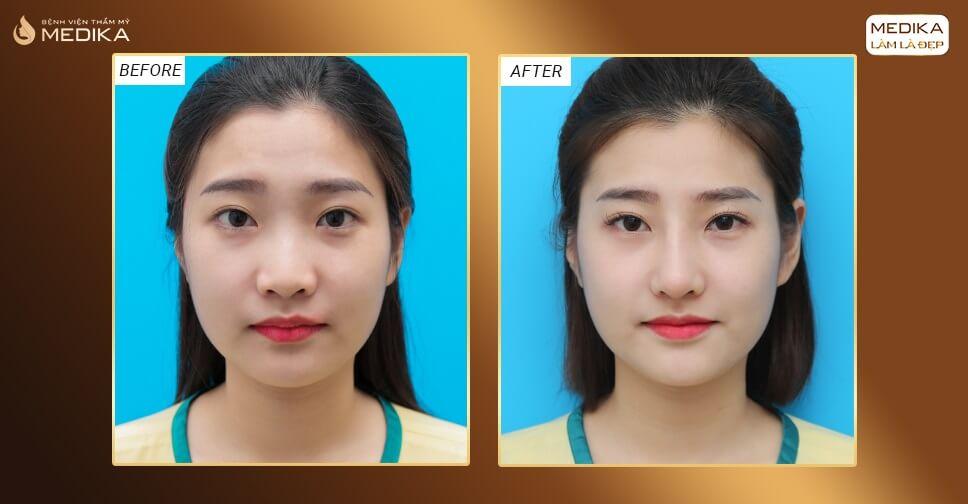 Kinh nghiệm nâng mũi bọc sụn được chia sẻ từ khách hàng MEDIKA ở Nangmuislinedep.com.vn