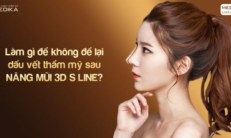 Làm gì để không để lại dấu vết thẩm mỹ sau nâng mũi 3D s line tại Nangmuislinedep.com.vn?
