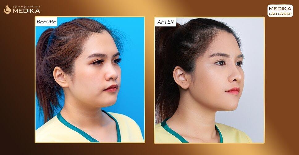 Nâng mũi 3D s line - Giải pháp cứu cánh cho nàng mũi tẹt ở Nangmuislinedep.com.vn