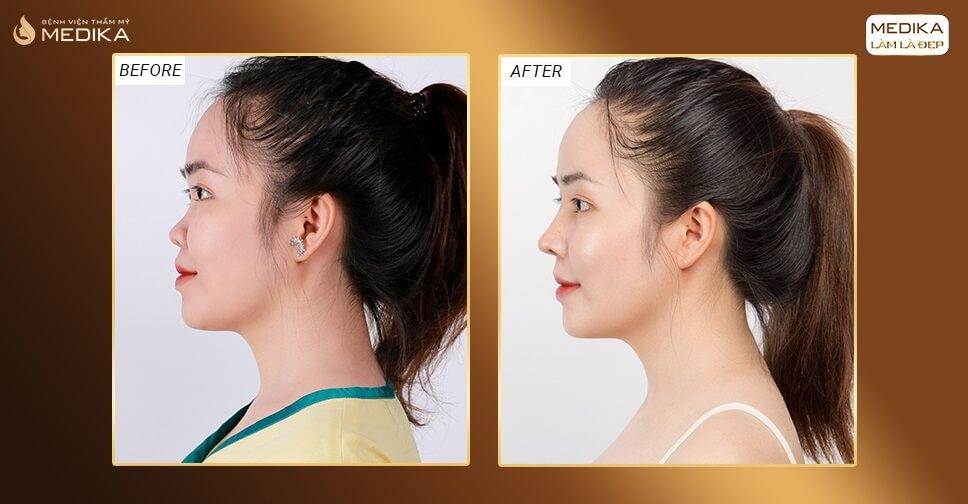 Nâng mũi cấu trúc - cứu tinh dáng mũi nhiều khuyết điểm ở Nangmuislinedep.com.vn