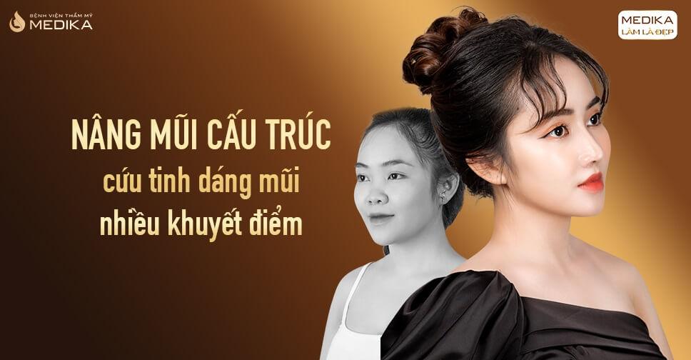 Nâng mũi cấu trúc - cứu tinh dáng mũi nhiều khuyết điểm tại Nangmuislinedep.com.vn