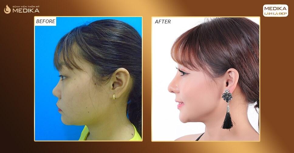 Những kiến thức cần thiết trước khi nâng mũi S line bởi Nangmuislinedep.com.vn