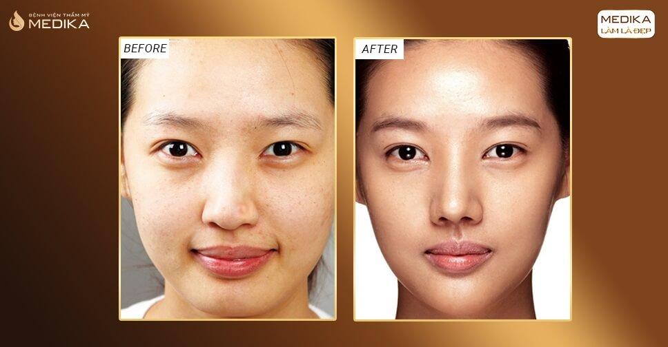 Thu gọn cánh mũi có để lại biến chứng bởi nangmuislinedep.com.vn?
