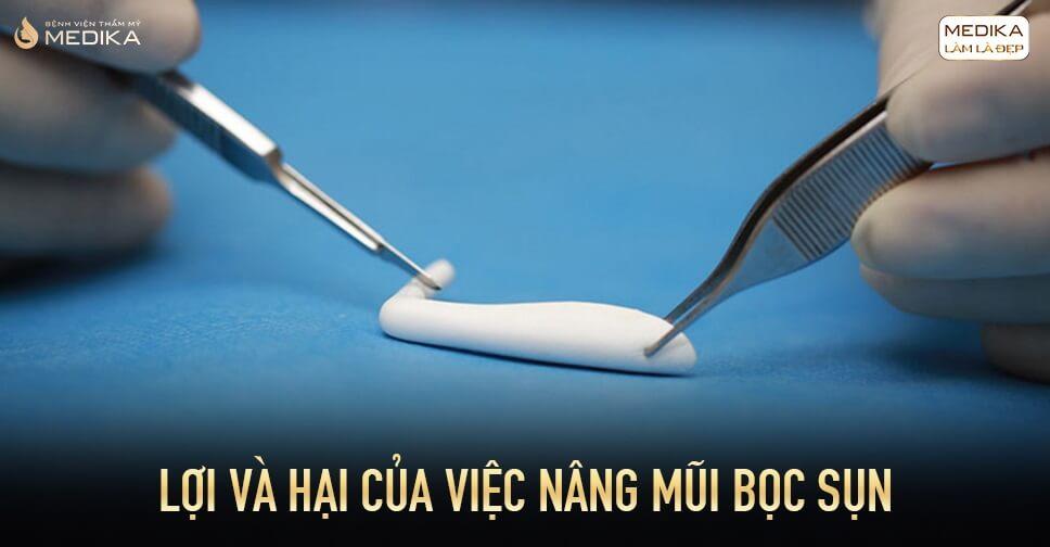 Lợi và hại của việc nâng mũi bọc sụn từ Nangmuislinedep.com.vn