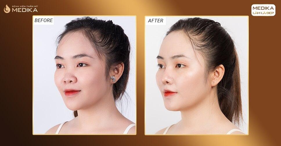Nâng mũi sụn tự thân có bị mất tai từ Nangmuislinedep.com.vn?