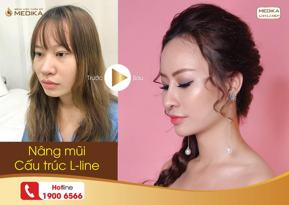 Nâng mũi L line xong bị lộ sóng phải làm sao bởi Nangmuislinedep.com.vn?