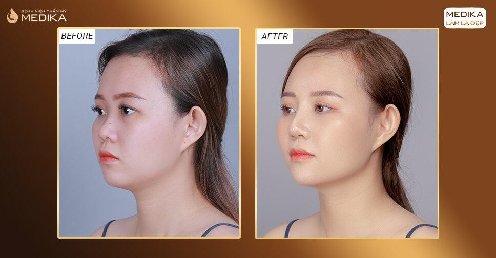 Nâng mũi S line - Bí quyết có được dáng mũi đẹp đạt chuẩn bởi Nangmuislinedep.com.vn