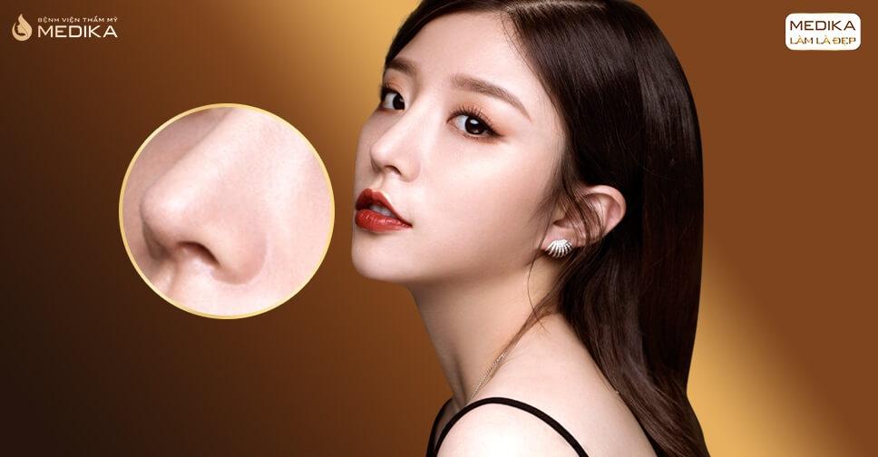 Phân biệt nâng mũi cấu trúc và nâng mũi bọc sụn từ Nangmuislinedep.com.vn
