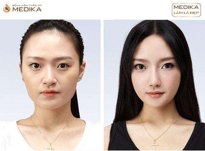 Thu gọn cánh mũi có cần thực hiện nâng mũi nữa không bởi Nangmuislinedep.com.vn?