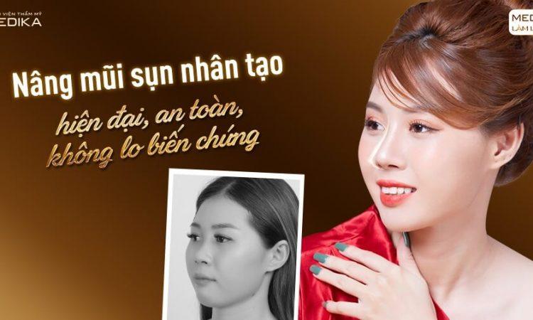 Thực hiện nâng mũi sụn nhân tạo có nguy cơ biến chứng cao không từ Nangmuislinedep.com.vn?