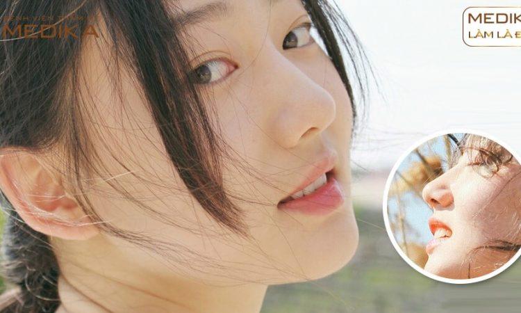 Tổng hợp những điểm khiến nâng mũi cấu trúc được ưa chuộng từ Nangmuislinedep.com.vn