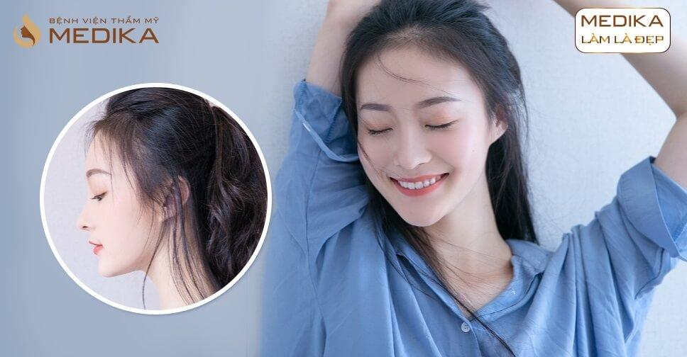 Làm sao để nâng mũi Hàn Quốc cao thanh chuẩn Hàn từ Nangmuislinedep.com.vn?