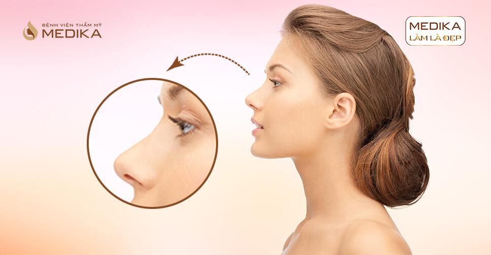 Nâng mũi S line có cần dùng sụn tự thân không tại Nangmuislinedep.com.vn?