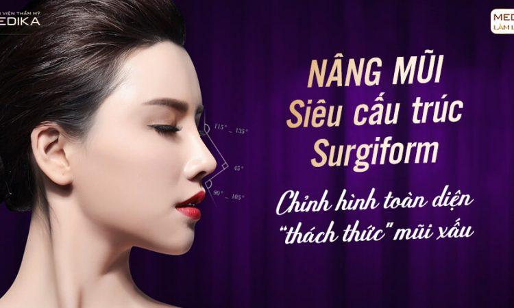 Nâng mũi Surgiform - Xu hướng làm đẹp 2021 tại Nangmuislinedep.com.vn