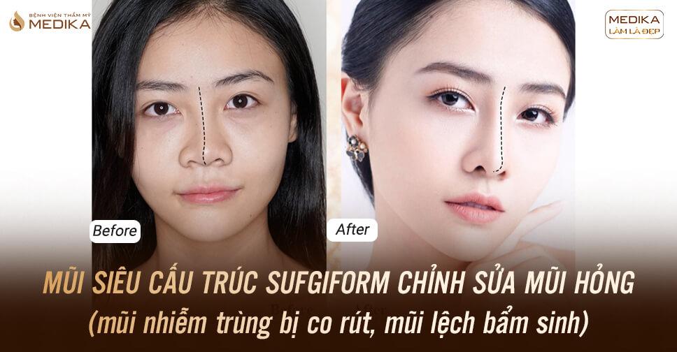 Phương pháp nâng mũi Surgiform liệu có tốt như lời đồn tại Nangmuislinedep.com.vn?