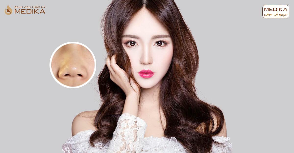 Cảnh báo biến chứng thu gọn cánh mũi tại spa - Nangmuislinedep.com.vn