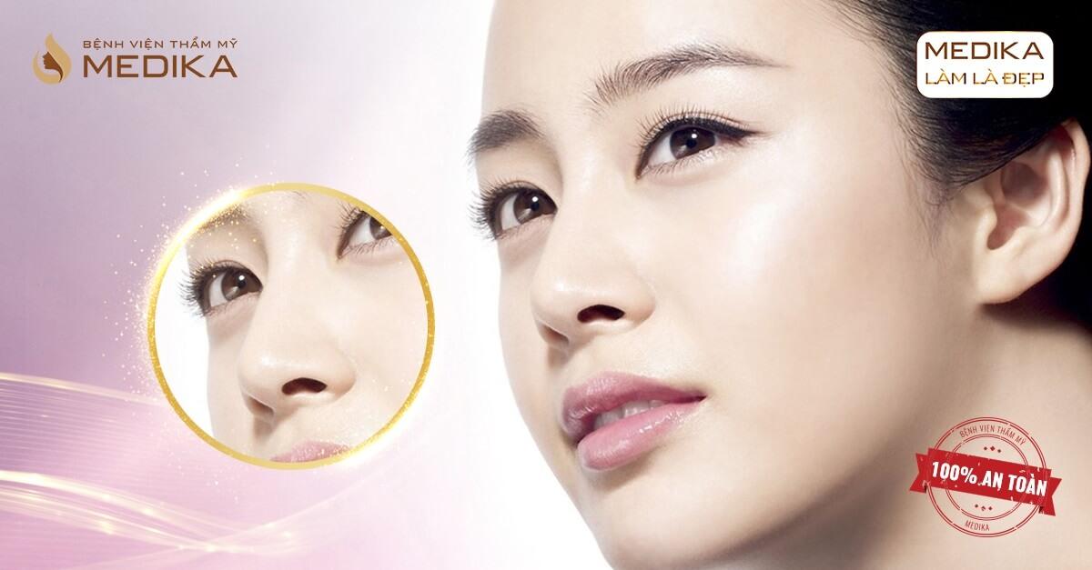 Nâng mũi bọc sụn - Biến chứng do sai sót trong kĩ thuật của bác sĩ tại Nangmuislinedep.com.vn