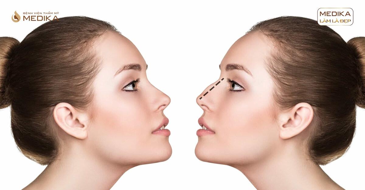 Nâng mũi sụn tự thân hay sụn nhân tạo duy trì vĩnh viễn ở Nangmuislinedep.com.vn?