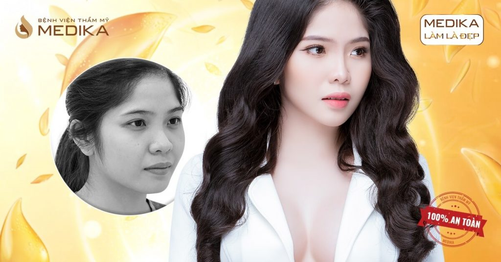 Nên hay không thu nhỏ đầu mũi với phương pháp làm đẹp khác ở Nangmuislinedep.com.vn?